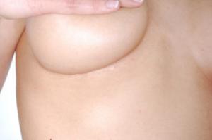 Abb. X: Verheilter Hautschnitt in der Unterbrustfalte