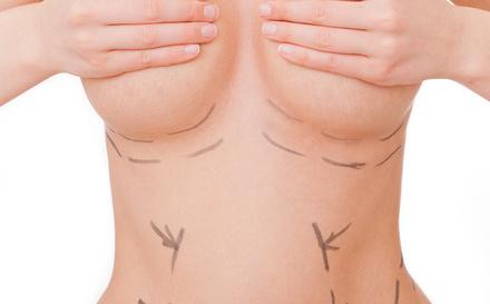 vorher nachher brust op brustwarzen entfernen