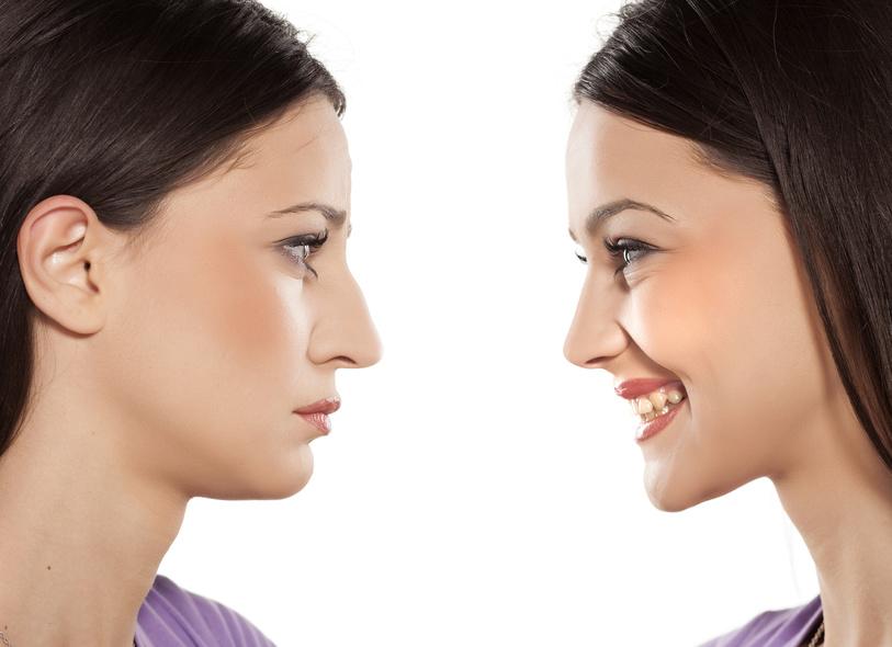 Nasenkorrektur ohne OP Köln   Aesthetic First